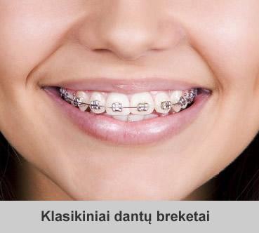 Ortodontiniai dantų breketai