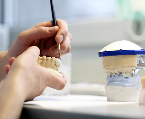 Implantų gamyba