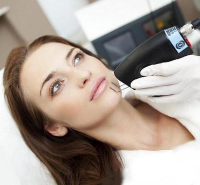 4d odos procedūra