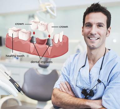 Implantavimas kai nėra kelių dantų vienoje eilėje
