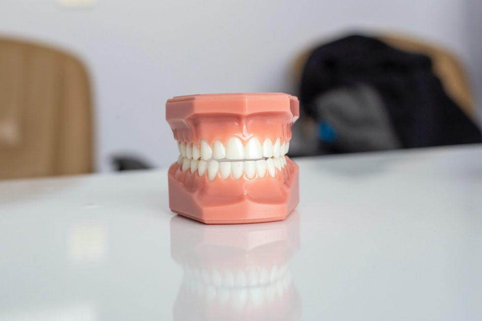 dantų protezavimas Vilniuje