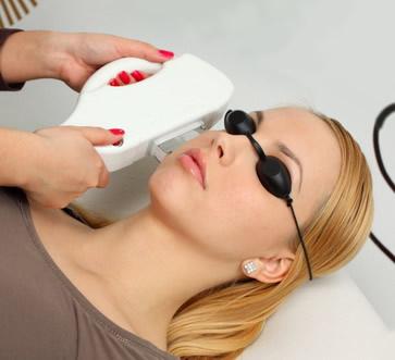 Kapiliarų šalinimo lazeriu procedūra dermatologijos klinikoje
