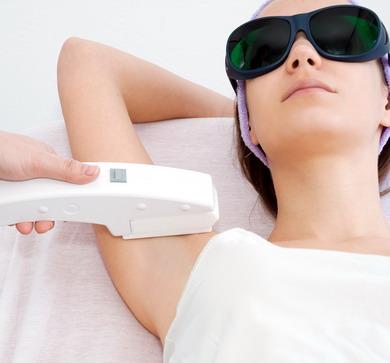 Plaukelių šalinimas lazeriu - procedūra